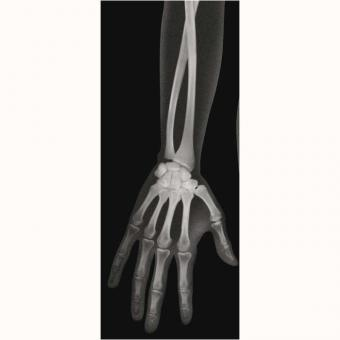Röntgenbilder-Mensch